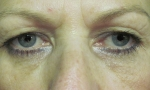 surgical blepharoplasty upper 1a