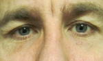 surgical blepharoplasty uppers 2a