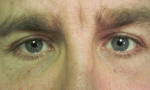 surgical blepharoplasty uppers 2b