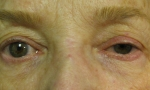 surgical blepharoplasty uppers 4a