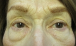 surgical blepharoplasty fat transp 1a