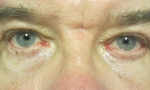 surgical blepharoplasty lowers fat transp 2b