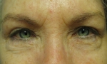 surgical blepharoplasty transcut lowers 1a