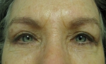 surgical blepharoplasty transcut lowers 1b