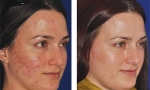 acne microneedling
