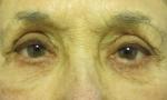 Pelleve eyes 1b