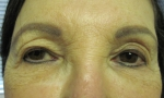 ptosis mullerectomy 1a