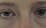 ptosis mullerectomy 2a