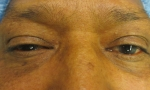 ptosis mullerectomy 3a