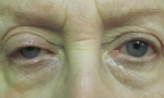 ptosis mullerectomy 4a