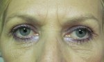 surgical blepharoplasty upper 1b
