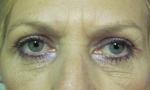 surgical blepharoplasty upper 1b