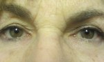 surgical blepharoplasty upper mullerectomy 3b
