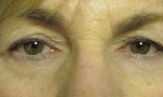 surgical blepharoplasty upper mullerectomy 3a