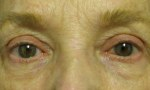 surgical blepharoplasty uppers 4b includes ptosis left