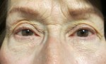 surgical blepharoplasty fat transp 1b
