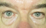 surgical blepharoplasty lowers fat transp 2a