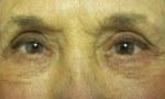 Pelleve eyes 1a