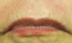 pelleve lips 1b