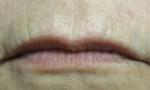 pelleve lips 1a