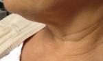 pelleve neck 1a