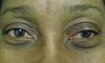 ptosis fasanella 1a