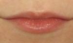 restylane lips 1a