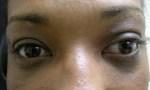 skin cancer 2b